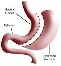 GastricXSleeve